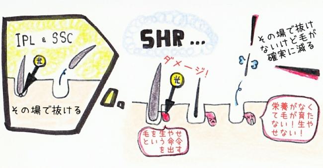 SHR脱毛 脱毛機 違い 光脱毛 IPL脱毛 SSC脱毛 蓄熱式 熱破壊式